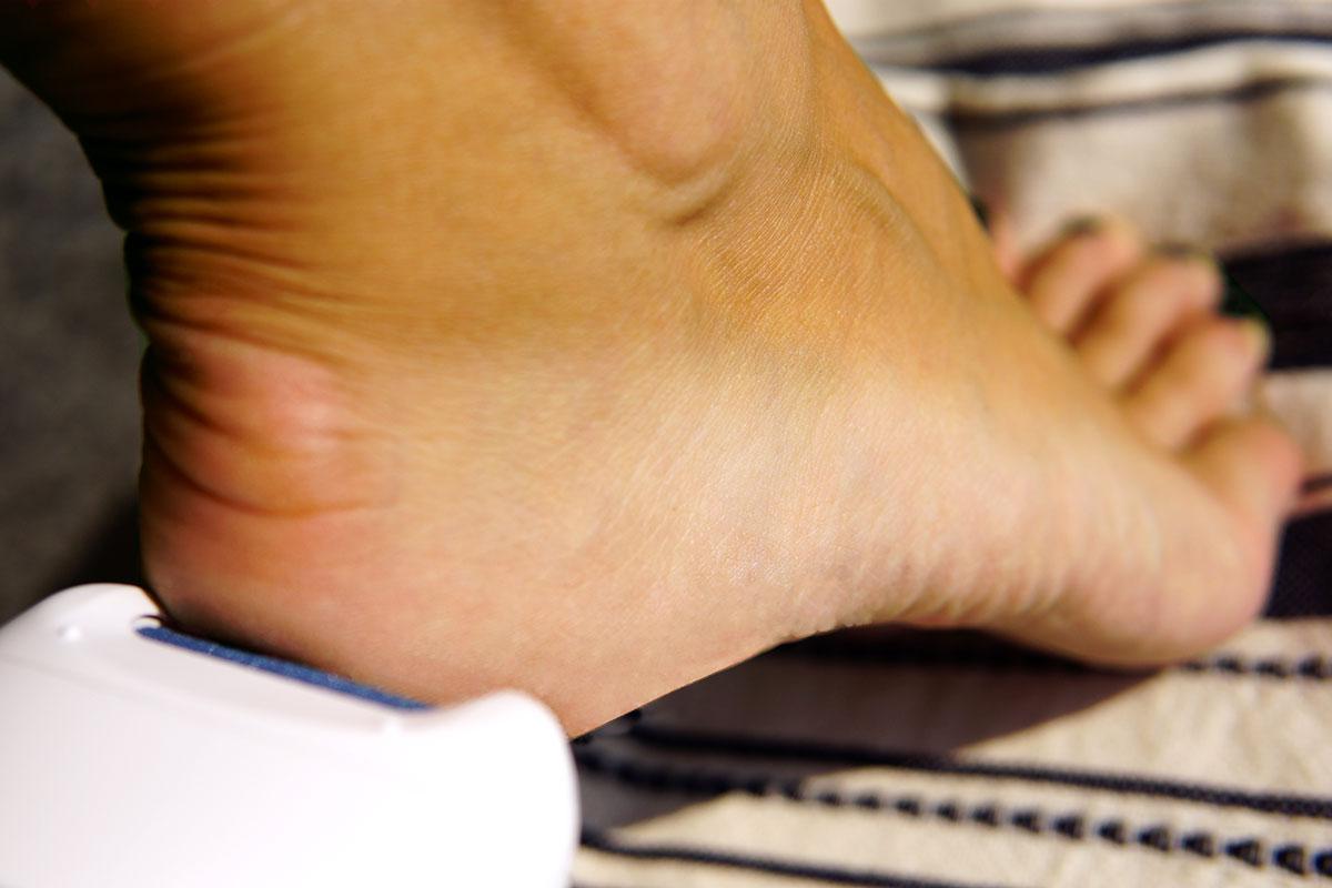 Obowiązkowa pielęgnacja skóry stóp